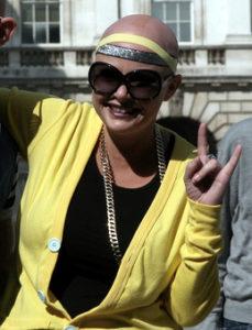 Gail-Porter-and-alopecia-awareness