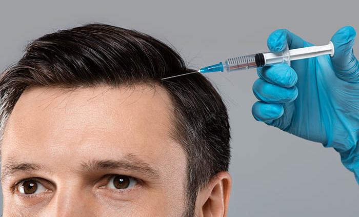 use of Botox for hair loss